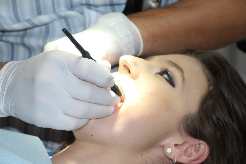 Facette dentaire : 5 conseils pour garder vos facettes en bon état